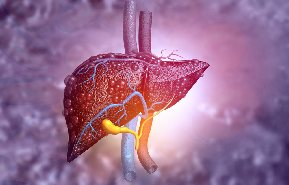 ReSet Your Liver to Avoid Fatty Liver Disease